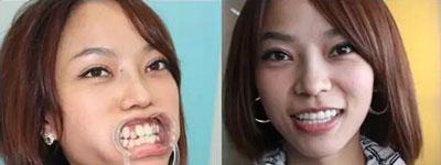 在这个看脸的世界,一口丑牙还该怎么办?